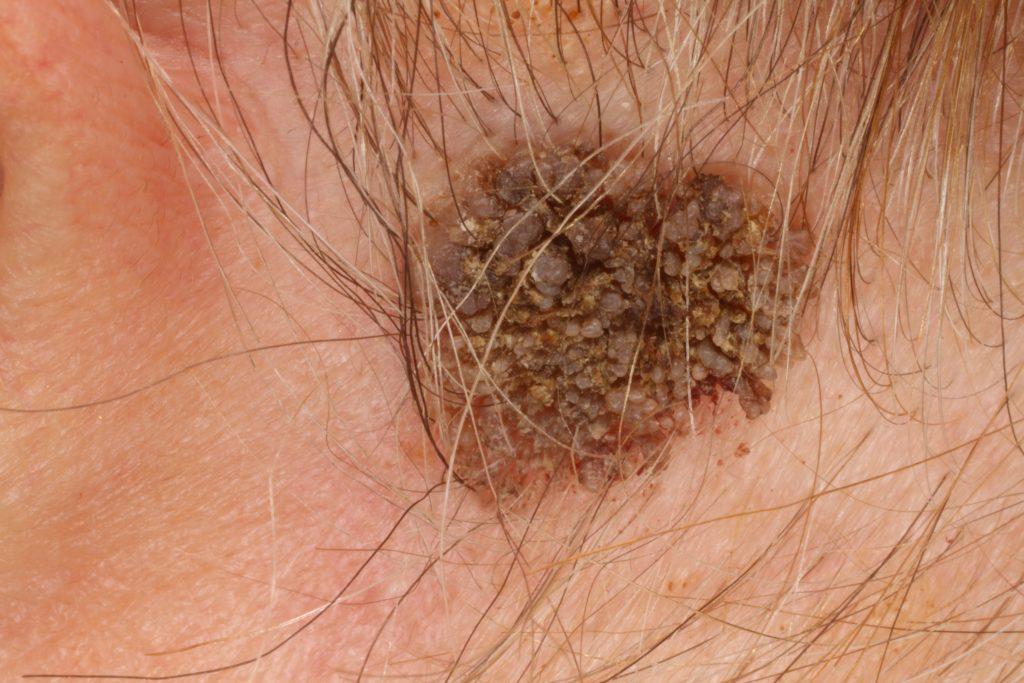 gégetrachealis papillomatosis