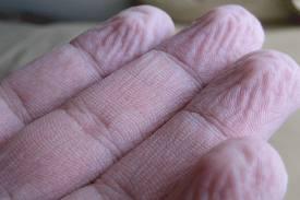 nedves lesz az ujjak között gyógyszerek felnőtt bélparaziták ellen