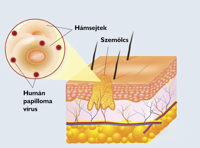 negi krioterápia hogyan lehet megmenteni a férgeket