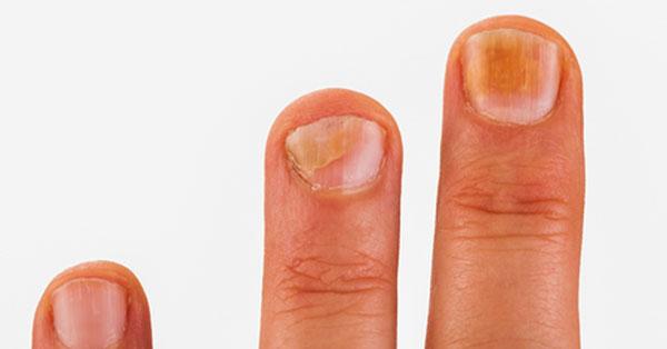 bőrrák a köröm alatt sok talpi szemölcs