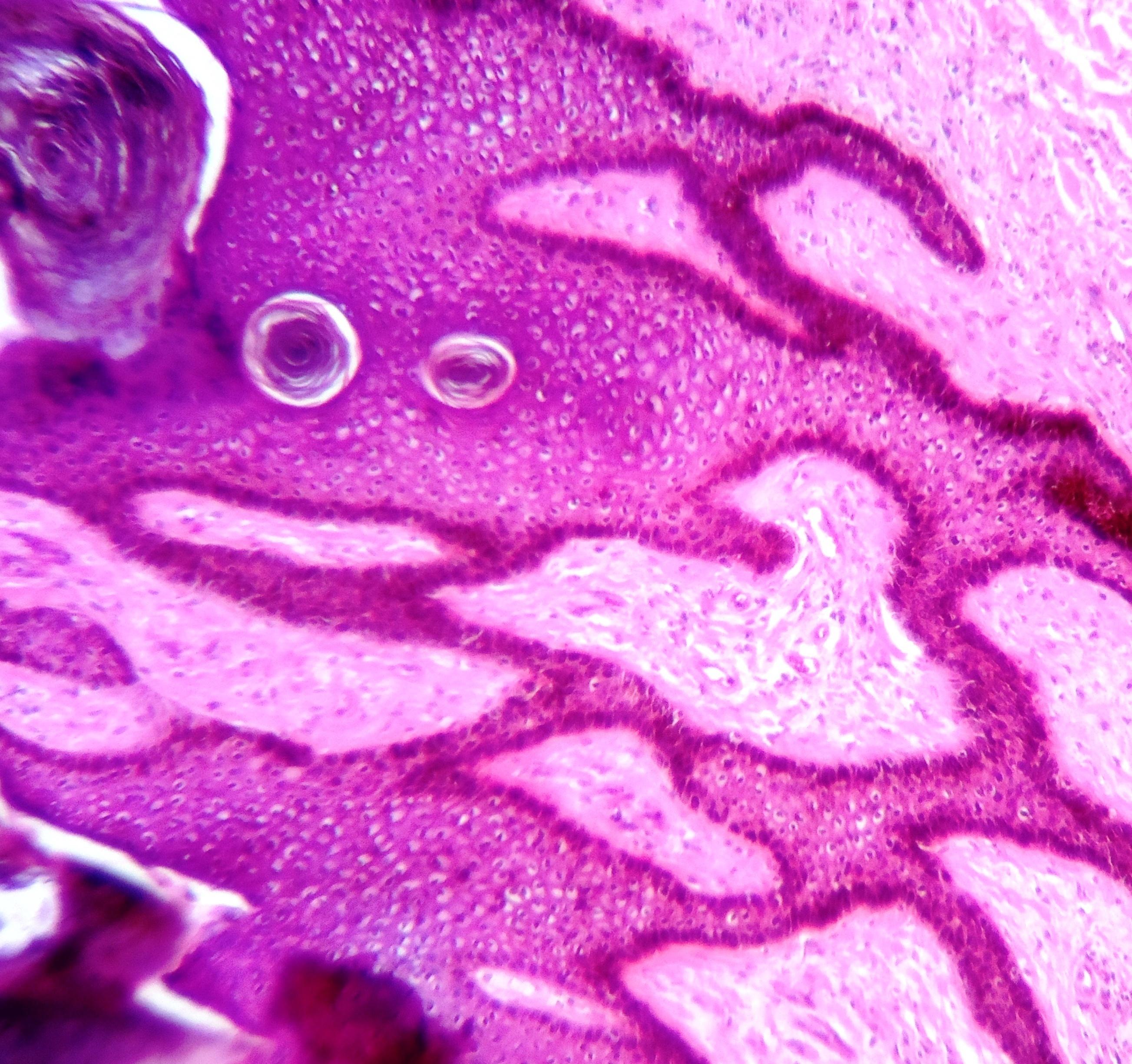 condylomata acuminata más néven szemölcs herpesz vírus