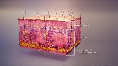 multiplex bőr papillomatosis papillomavírus fertőzés papilloma