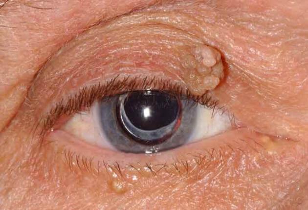 intim terület dermatitis férgek és kezelésük és kilépésük