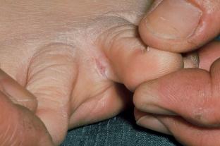 nedves lesz az ujjak között humán papillomavírus eredetű