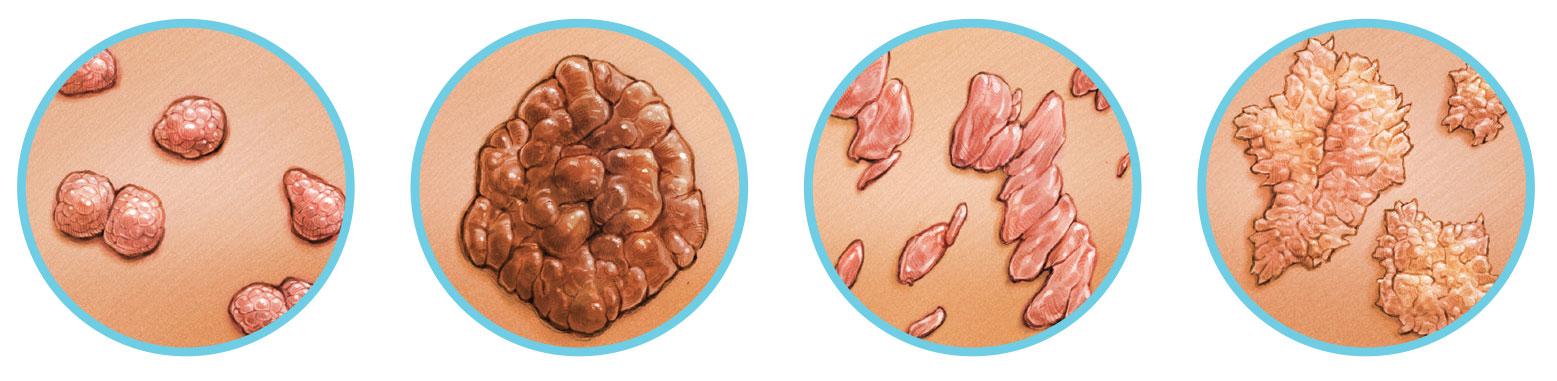 nyelőcső és papillomavírus