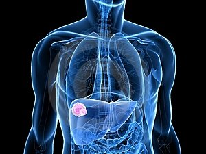 daganatos rákos szarkóma szemölcsök a kéz terhesség