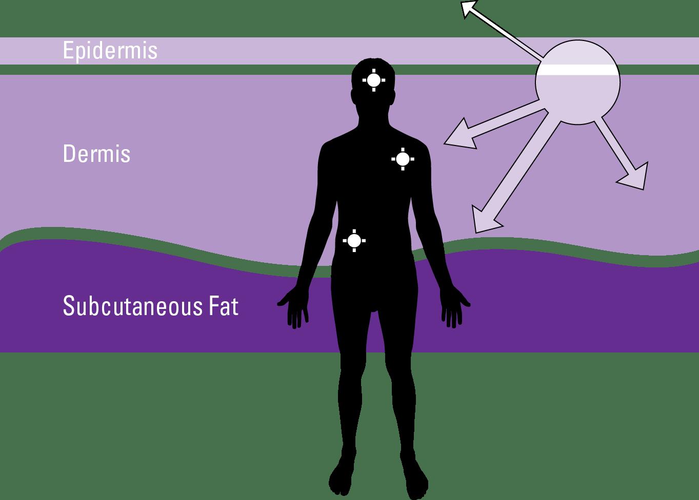 3. stádiumú bőrrák