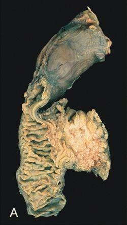Vastagbélrák, máj és tüdőáttét (jelige: Mária1949)