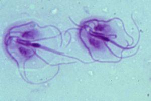 lásd engem oxiurus csecsemőkezelés