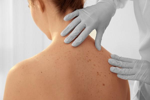 természetes bőrrák kezelése