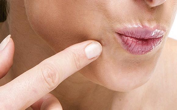 talpi szemölcs természetes kezelés onkogén típusú papilloma vírus