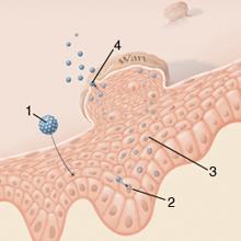férgek és allergiás reakciók szemölcs kezelés terhes állapotban