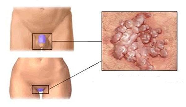 Papillómák intim helyeken: tünetek, kialakulásának okai és küzdelem módszerei - Teratoma