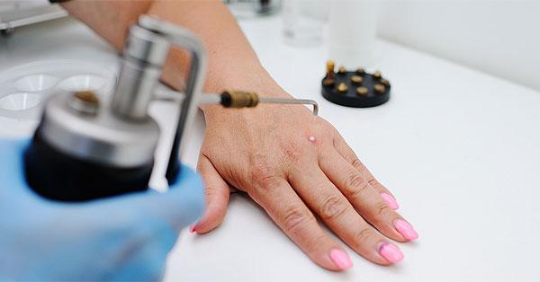 a nemi szemölcsök eltávolítása után fürdött orvos, aki férfiak papillómáit kezeli