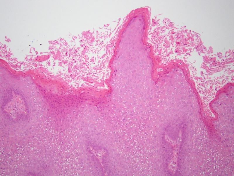 mit jelent a parazitózis férgek és protozoonok elleni gyógyszerek