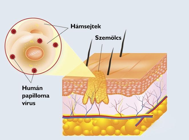 vestibularis papillomatosis nedir hpv vírus a bőrön