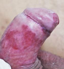 condyloma férfiaknál a húgycsőben a férgek meggyógyítják őket