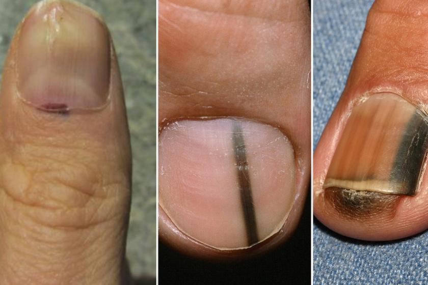 bőrrák a köröm alatt milyen beöntéseket készítenek a férgek