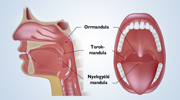 papillomavírus és mandulák