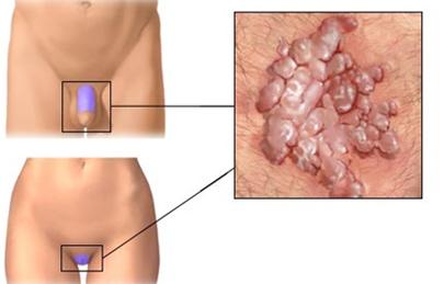szemölcsök vagy polipok a hüvelyben A nyirokrák tünetei okozzák