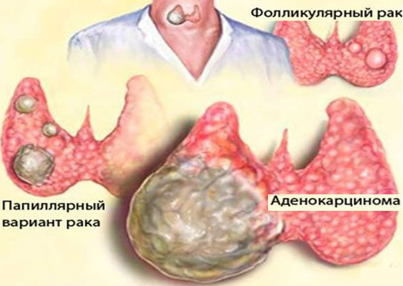 papilláris urothelialis betegség hogyan terjednek a férgek