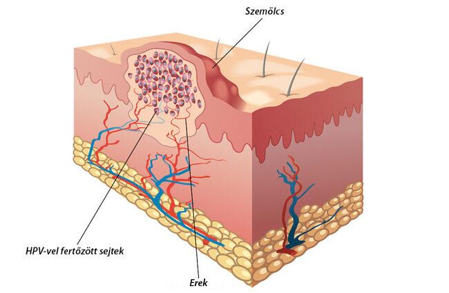 emberi papillomavírus szemölcsök okozzák