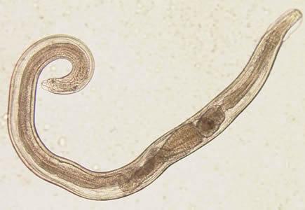 enterobius vermicularis baba a bőr patológiájának pikkelyes papillómája körvonalazódik
