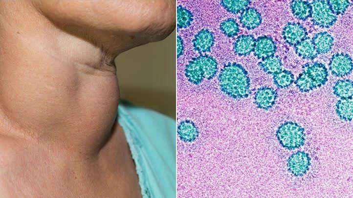hpv vírus és candida