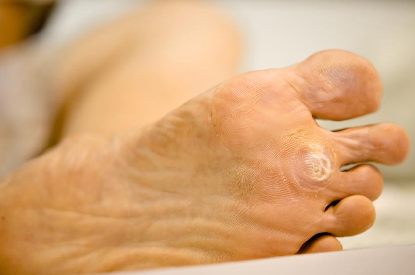 elektrokoagulátor a genitális szemölcsök számára kenőcs vagy gyógyszer a genitális szemölcsök ellen