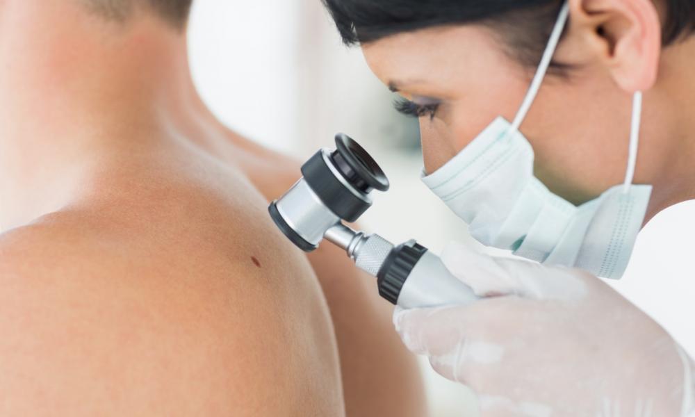 férfi mellbimbó rák parazita ótvar