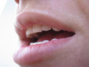 HPV: újonnan felismert kockázati tényező a fej-nyaki rákok kialakulásában   fitnesspro.hu