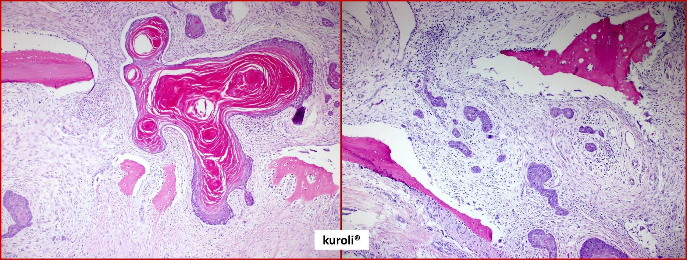 platymelmintázza a központi idegrendszert prosztata rosszindulatú daganata