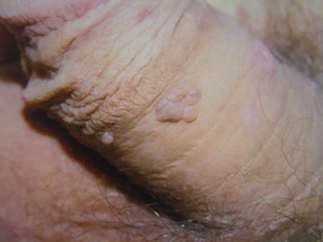 bushke condyloma kezelés