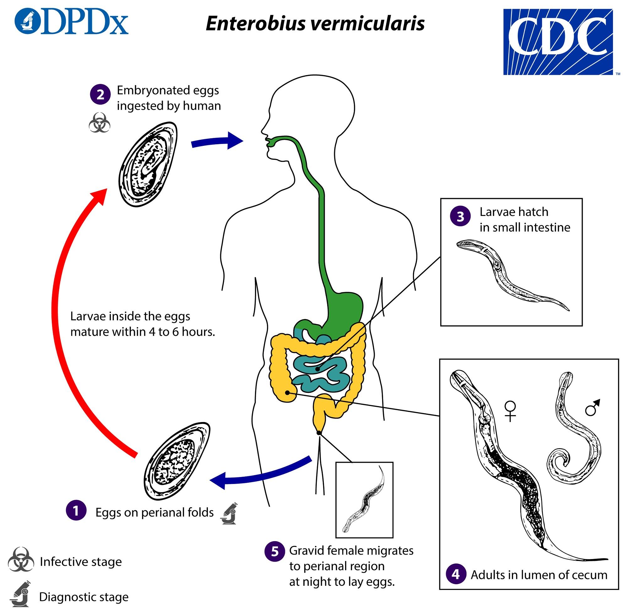 Pinworms a hüvelyben tünetei