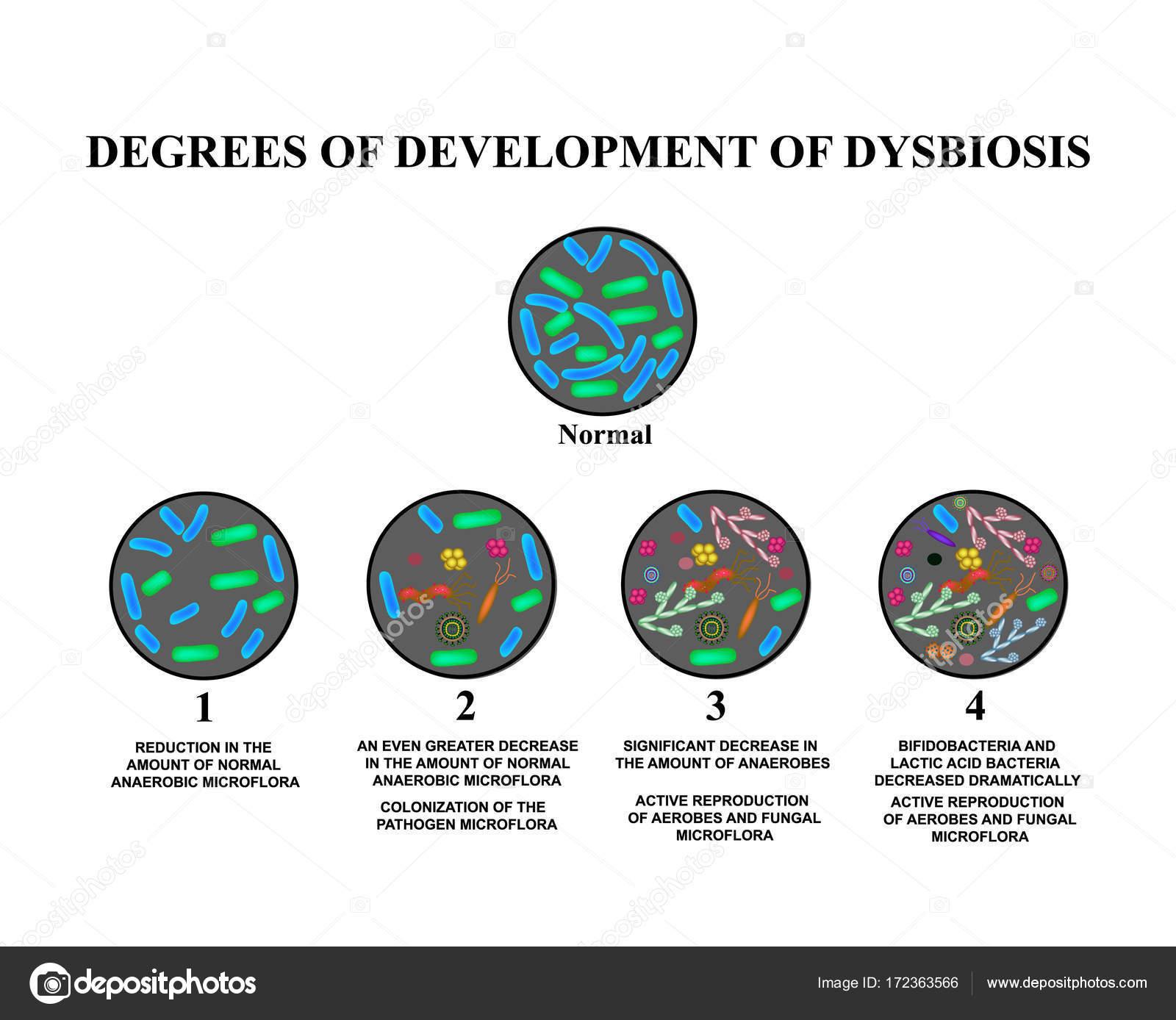 Bél dysbiosis gyermek. OTSZ Online - Keresés