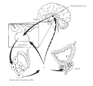 egy másik kifejezés az átmeneti sejtes papillómára