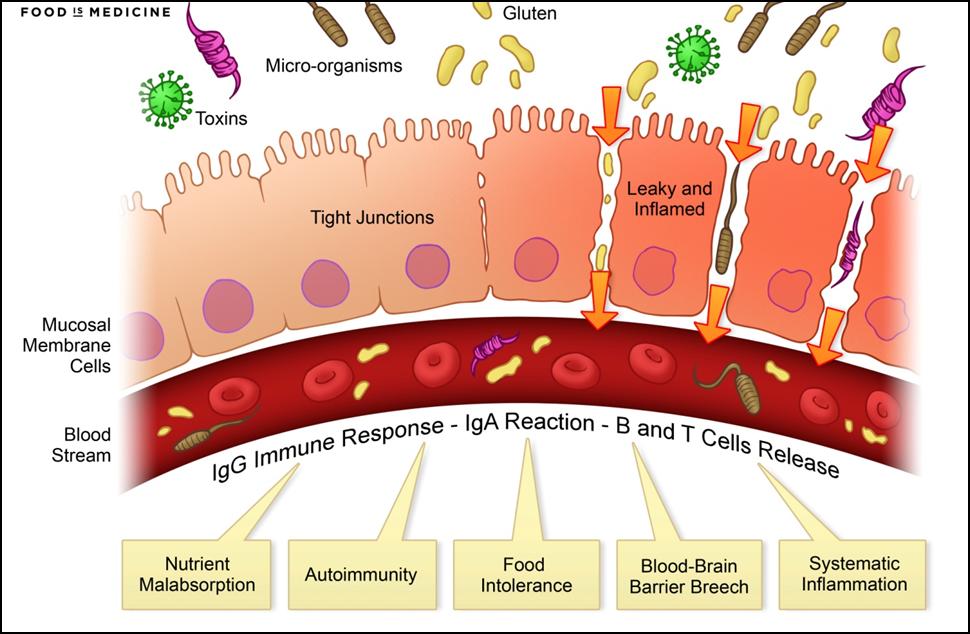 dysbiosis mit nem szabad enni vastagbélrák fájdalma