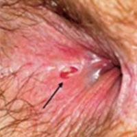 gombás orr papilloma