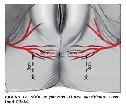 a nyaki condyloma veszélyes papilloma vírus hogyan továbbítják a kezelést