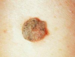 papilloma vírus a lábakon
