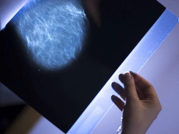 prosztata rosszindulatú daganata