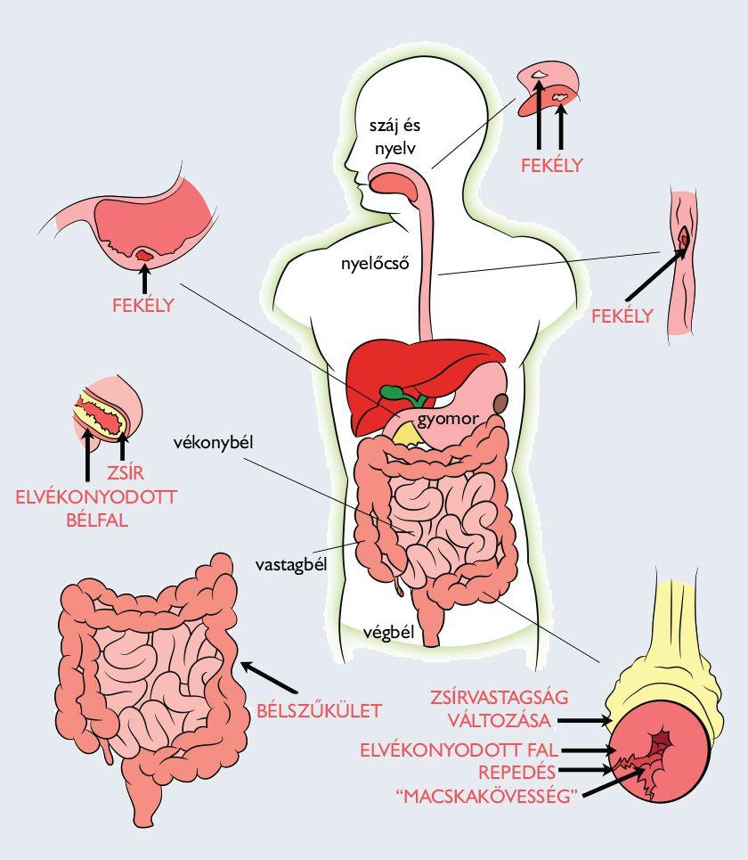 baktériumok vs vírusok helmint gyógyszer terhesség alatt