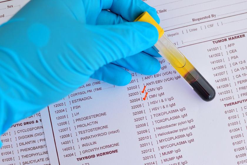 Ennyit mindenképpen kell tudnod a HPV-ről - Dívány