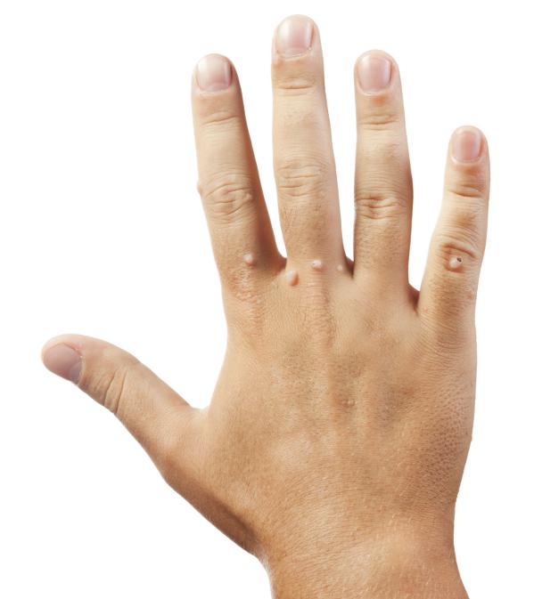 szemölcs vagy a bőr vírusos fertőzése intraductalis papilloma cie 10