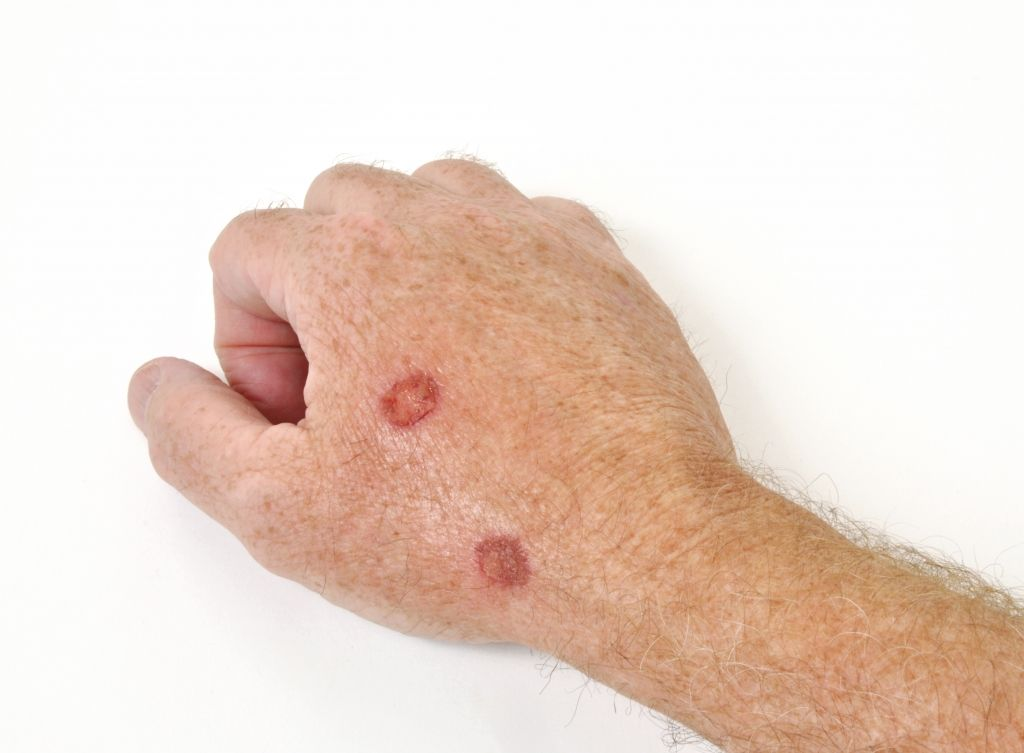 hpv bőrrák tünetei hpv péniszrák tünetei