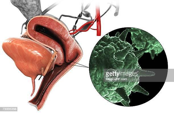 condylom vektor a tüdő neuroendokrin rákja