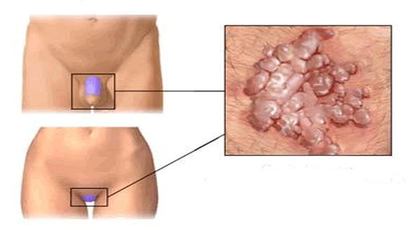 condyloma eltávolító kezelés pinworm kezelés 6 éves gyermekek