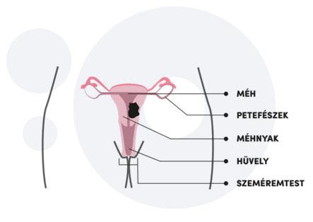 hpv péniszrák tünetei paraziták a vizeletmikroszkópban