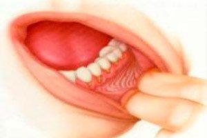 szájüregi rák szakaszai nemi szemölcsök kialakulása