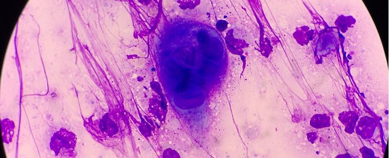 nőgyógyászati vírusok
